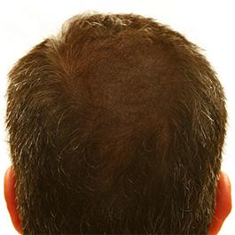 utrata włosów na czubku głowy